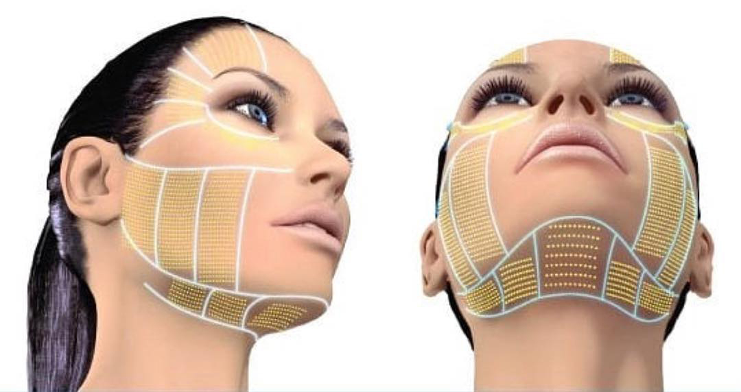 HIFU Face & Neck Skin Tightening Course (Accredited – Group) – ELK