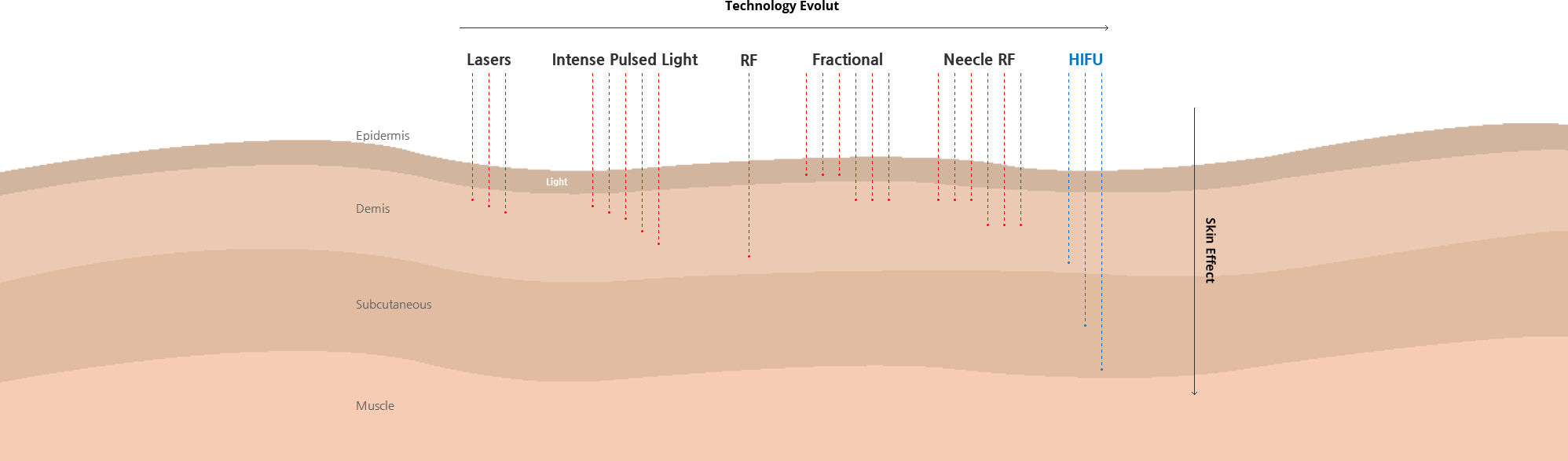 Unstable HIFU energy that causes burns vs e.l.k Utims (TM) stable HIFU energy
