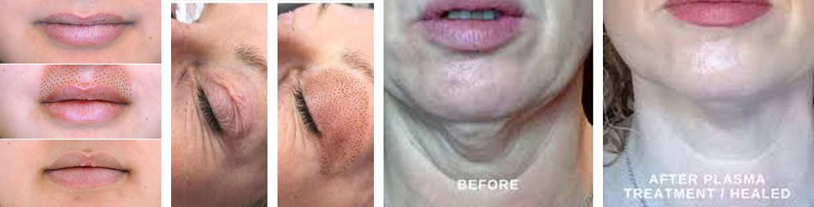 PLASMA Fibroblast Skin Tightening Course (Accredited